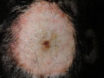 dermatologia07