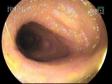 endoskopia19