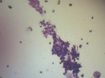 onkologia02